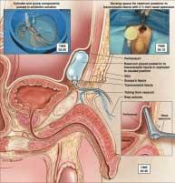 Protesi Pene: Antonini primo in Italia 4