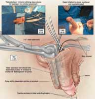 Protesi Pene: Antonini primo in Italia 5